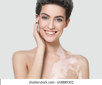 Vitiligo woman beauty portrait. Studio shot. Gray background.