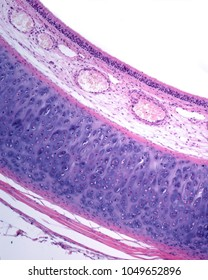 Wall of the trachea showing the mucosa layer (respiratory epithelium and lamina propria, with large blood vessels), the hyaline tracheal cartilage and the adventitia layer.