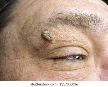 Wart or mole on the face - big and small papillomas on the skin of the eyelid