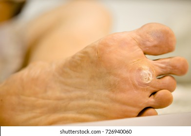 wart on foot