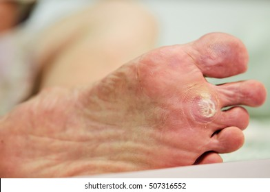 wart under foot can treatment by salicylic acid