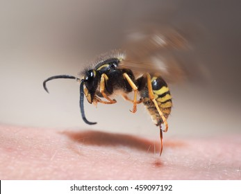 Wasp sting pulls out of human skin. macro