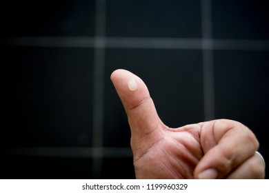 water blister on  finger caused by  skin friction