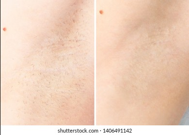 waxing cosmetic depilation procedure results before after armpit depilation