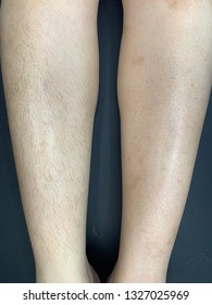 Waxing legs,before After