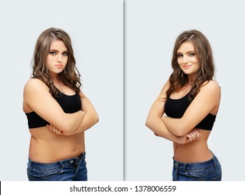 Weight loss, diet, abdominoplasty.