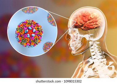 Western equine encephalitis, medical concept, 3D illustration showing brain infection and close-up view of Western equine encephalitis viruses