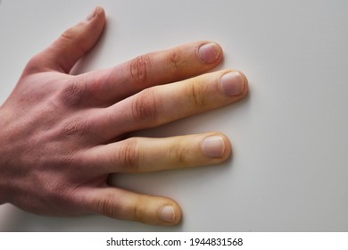 white fingers from the cold, poor blood circulation