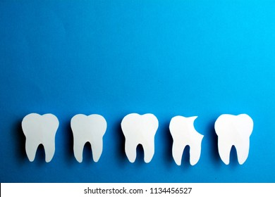 White healthy teeth over blue background  with copy space. Dental care and whitening teeth. Tooth restoration. Installation of the dental implant. Oral dental hygiene Concept.