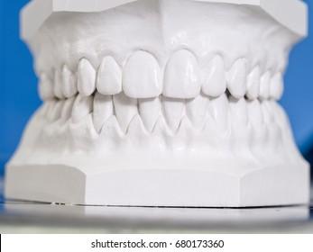 White mold dental of plaster.
