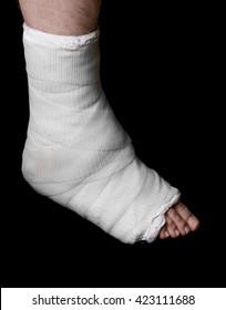 Foot Cast Images, Stock Photos & Vectors   Shutterstock