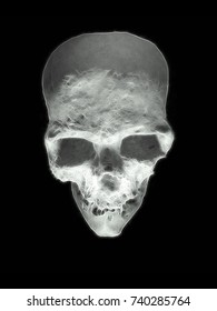 white skull with shadows and cracks on a black background
