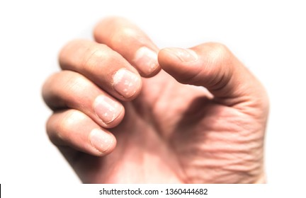 White spot of Nail disease (Leukonychia). Hand on white background, male hands