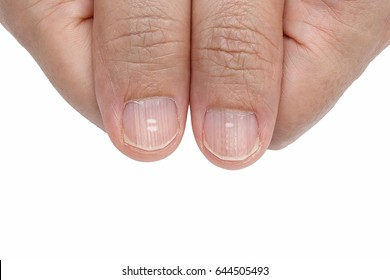White spots and Vertical ridges on the fingernails symptoms deficiency vitamins and minerals