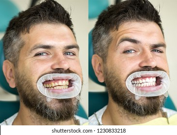 White teeth - before and after concept. Close-up detail of man teeth before and after whitening. Result of teeth whitening. Perfect smile after bleaching