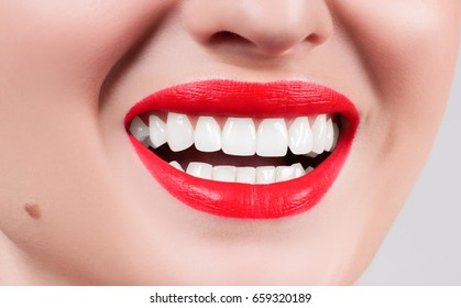 White teeth and red lips. Perfect female smile after bleaching. Dental care and whitening teeth. Stomatology and beauty care.