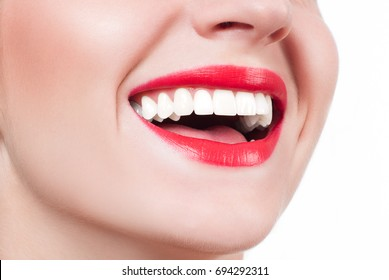 White teeth and red lips. Perfect female smile after bleaching. Dental care and whitening teeth.