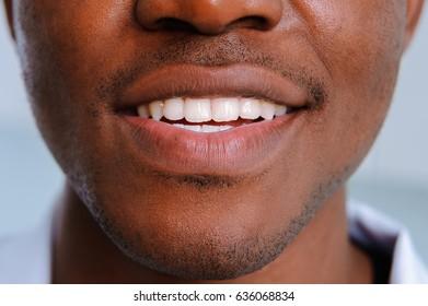 White teeth smile black man close up