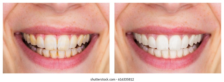 Whitening - Dental care, a beautiful smile and teeth whitening treatment before and after. horizontal