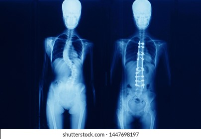 Whole spine x-ray of a scoliosis patient showing before and after corrective deformity surgery. The disease is called adolescent idiopathic scoliosis or AIS. Operating procedure.
