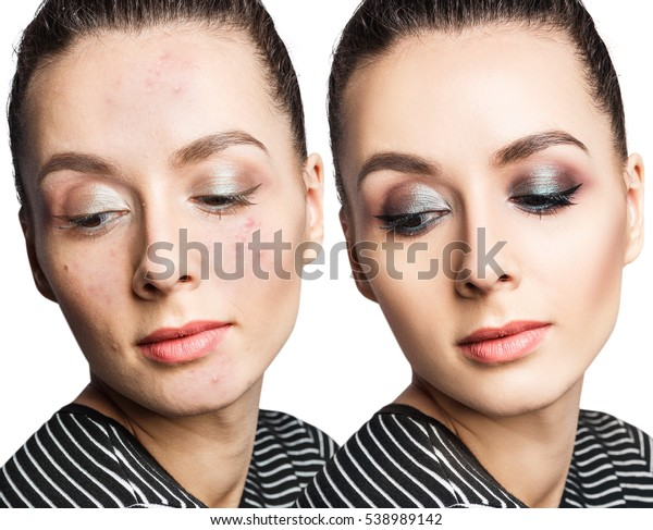 Woman Acne Before After Makeup Stock Photo Edit Now 538989142