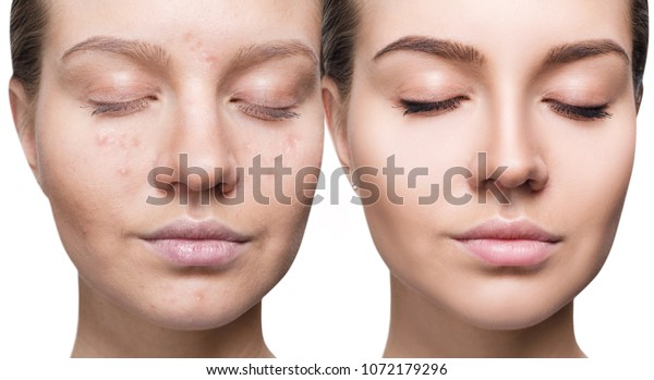 Woman Acne Before After Treatment Makeup Stock Photo Edit Now 1072179296