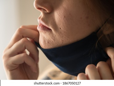 Woman with acne and irritation from wearing a mask.