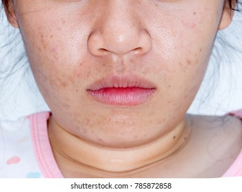 a woman acne on the face