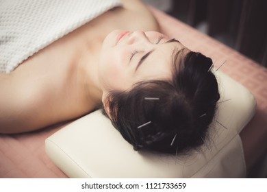 Woman in an acupuncture therapy at the health spa