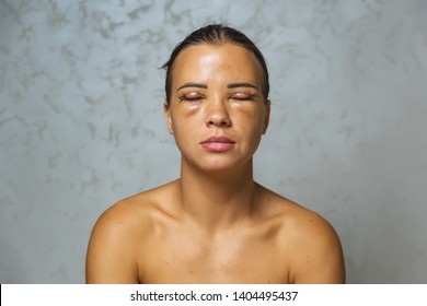 Woman after plastic surgery on the eyes. Stitches on the eyelids after blepharoplasty. The condition of the face immediately after the removal of bags under the eyes and eye hernias.
