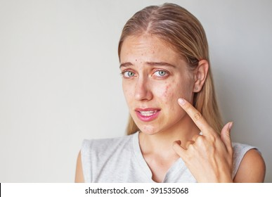 woman with allergy on her face