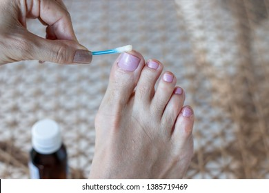 Woman Applying Anti fungus Medicine to infected Big Toe with a Cotton Swab