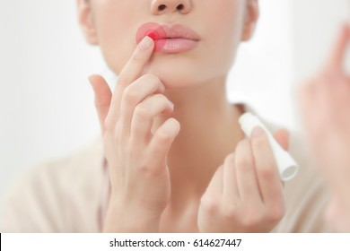 Woman applying balm on lips. Herpes virus concept