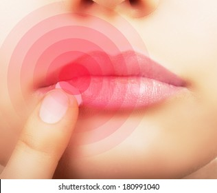 Woman  applying cream on lips affected by herpes, shown red.