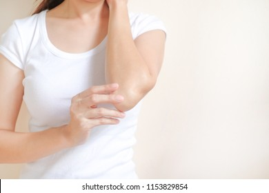 Woman applying elbow cream,lotion , Hygiene skin body care concept.
