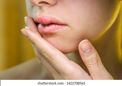 Woman Applying Ointment on Her Upper Lip with Herpes. Medical Background of a Young Beautiful Woman with Herpes Labialis. Treatment of Herpes Symptoms