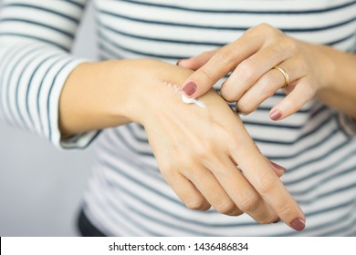 A woman applying scars removal cream to heal the first degree - heat burn wound on her hand. Healing, Removal, treatment, Hot oil burn, Vitamin E, Scars care, Skin care products, Medical cream, Repair