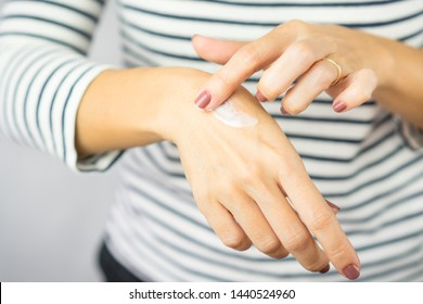 A woman applying scars removal cream to heal the first degree -  heat burn wound on her hand. Healing, Removal, treatment, Hot oil burn, Vitamin E, Scars care, Skin care products, Medical cream.
