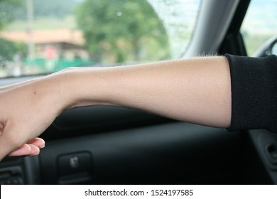 Woman arm with goose bumps in a car