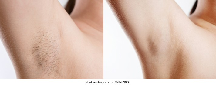 Woman with armpit hair, female hairy armpit, before and after shaving