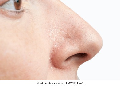 Woman with atopic dermatitis symptom on her nose