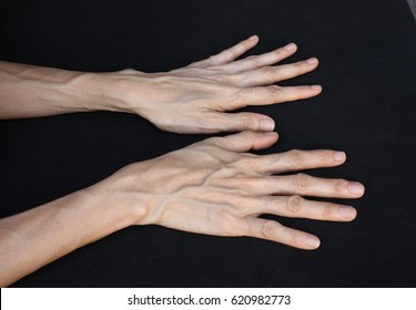 Woman back hand with blood veins.The hand external skin see the texture of blood vessel under the outer skin represent the healthcare concept related idea.selective focus