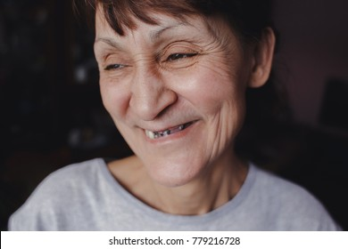 A woman with bad teeth smiles happily. Broblem with teeth, no teeth, a blank for the tooth bridge