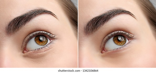 Woman before and after blepharoplasty procedure, closeup. Cosmetic surgery