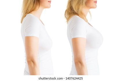 Woman before and after breast augmentation plastic surgery