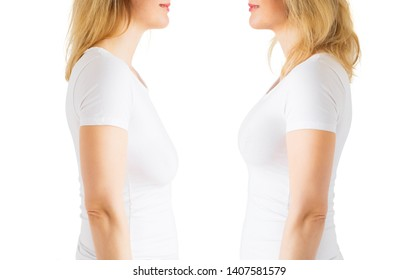 Woman before and after breast lift enhancement plastic surgery