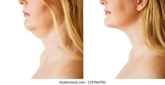 Woman before and after chin fat correction procedure