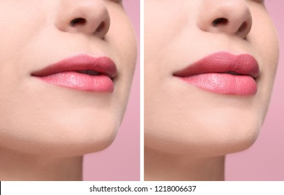 Woman before and after lips augmentation procedure, closeup. Cosmetic surgery