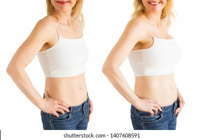 Woman before and after plastic surgery of breast enhancement with silicone implants