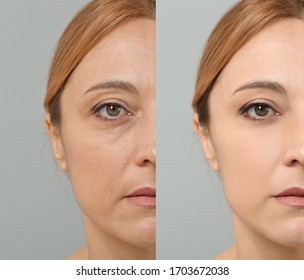 Woman before and after plastic surgery on grey background